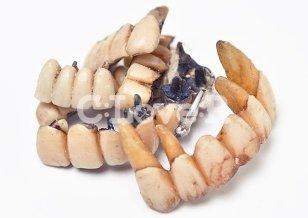 歯科貴金属(歯科金属スクラップ)